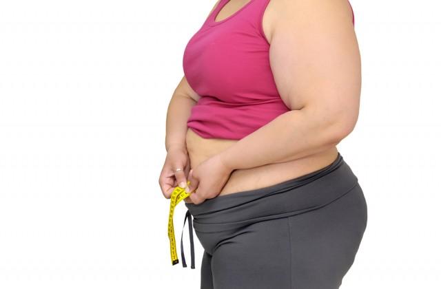 obesidade no brasil doutissima shutterstock