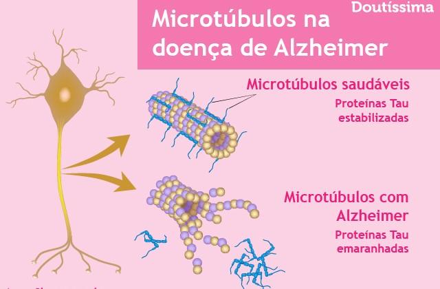 sinais de alzheimer infográfico doutíssima