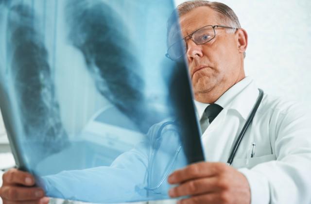 aspergilose pulmonar doutíssima istock getty images