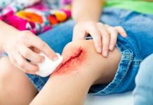 ferimentos-doutissima-istock-getty-images