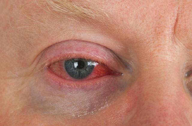 síndrome do olho vermelho istock getty images doutíssima