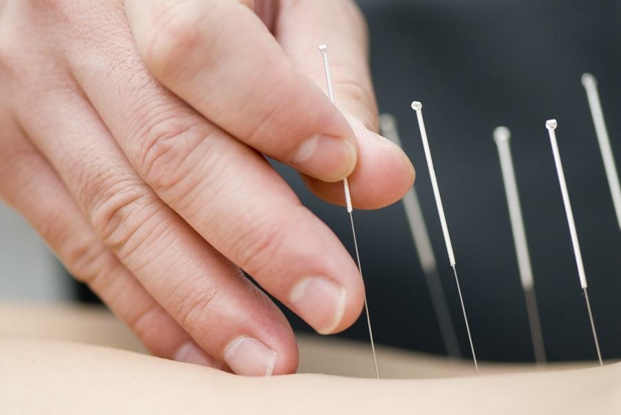 Tratamento com acuputura. Foto: iStock/GettyImages