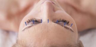 Dores de cabeça podem ser tratadas com acunputura. Foto: iStock/GettyImages