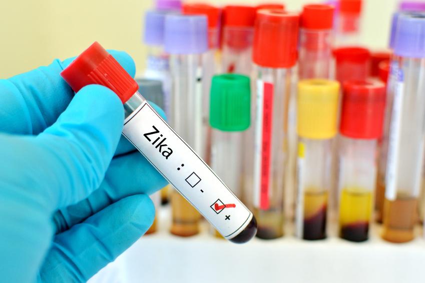 vírus zika no Brasil