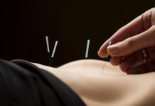Miomas uterinos e acunputura.