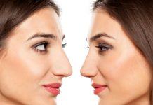 Cirurgia plástica em nariz