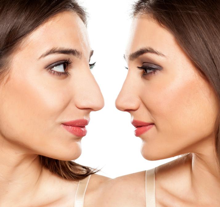 Fotos cirurgia plastica de nariz 85