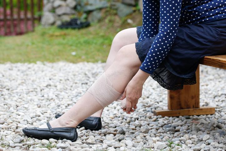 Confira dicas para reduzir as varizes na gravidez. (Foto: Istock)
