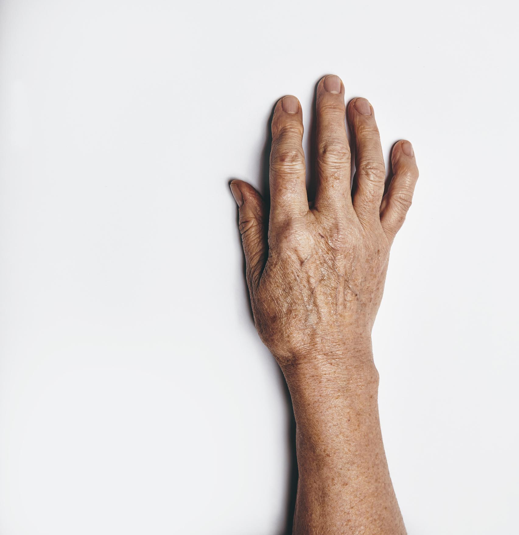 Braço com manchas de envelhecimento