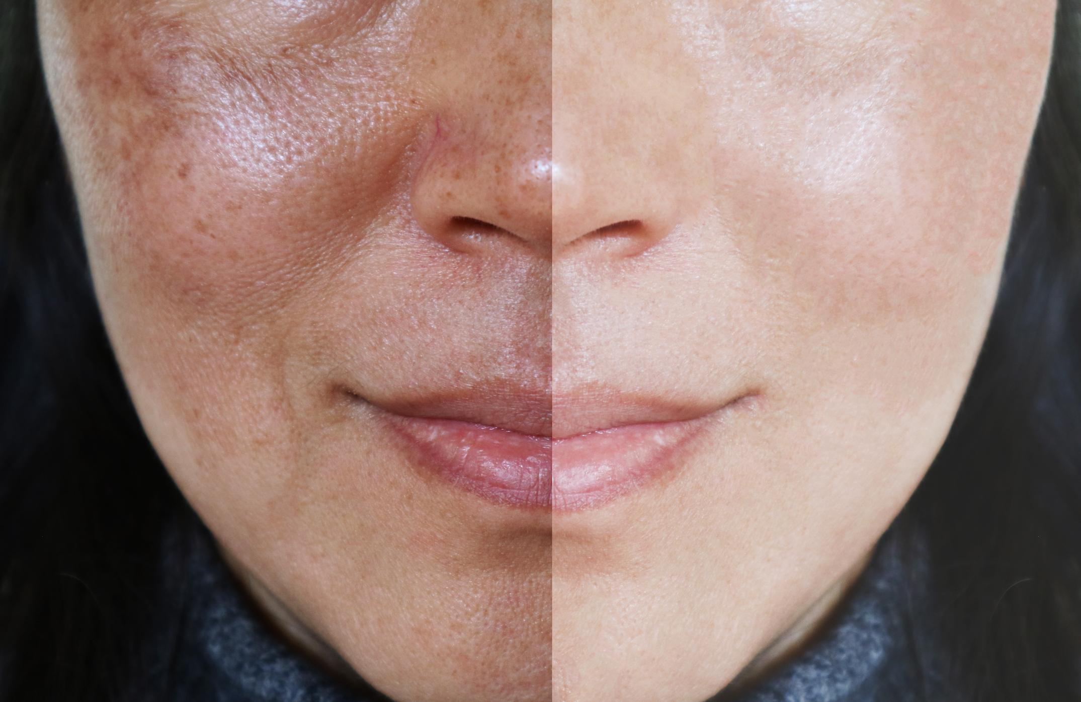 mulher com manchas na pele